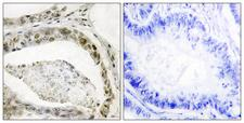 SMAD3 Antibody - Immunohistochemistry analysis of paraffin-embedded human colon carcinoma, using Smad3 (Phospho-Ser208) Antibody. The picture on the right is blocked with the phospho peptide.