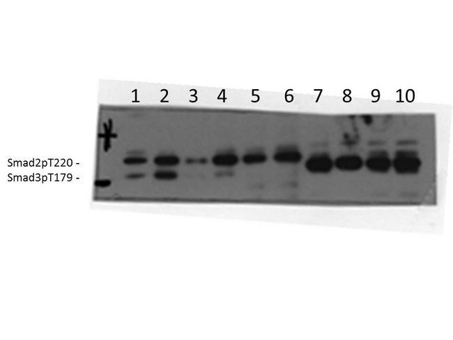 SMAD3 Antibody - Western Blot of rabbit Anti-SMAD3 Antibody. Lane 1: AML12 unstimulated. Lane 2: AML12 stimulated with TGFB. Lane 3: MEFwt unstimulated. Lane 4: MEFwt stimulated with TGFB. Lane 5: MEF Smad3 KO unstimulated. Lane 6: MEF Smad3 KO stimulated with TGFB. Lane 7: HEK293 Smad3T179A mutant unstimulated. Lane 8: HEK293 Smad3T179A mutant stimulated with TGFB. Lane 9: HEK293 Smad3T179V mutant unstimulated. Lane 10: HEK293 Smad3T179V mutant stimulated with TGFB. Load: 35 µg per lane. Primary antibody: SMAD3 Antibody at 1:1000 for overnight at 4°C. Secondary antibody: rabbit secondary antibody at 1:10,000 for 45 min at RT. Block: 5% BLOTTO overnight at 4°C. Predicted/Observed size: 48.1kDa. Other band(s): Smad2pT220.