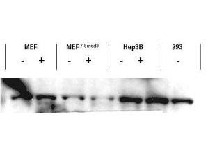 SMAD3 Antibody - Anti-Smad3 Antibody - Western Blot. Western blot of affinity purified anti-Smad3 antibody shows detection of endogenous Smad3 in both unstimulated and stimulated cell lysates. Lysates were prepared from control cells (- lanes), or cells stimulated with 2 ng/ml TGF-beta lanes for 1 hour. This reagent recognizes both non-phosphorylated and phosphorylated Smad3 protein. Personal Communication. Ying Zhang, NIH, CCR, Bethesda, MD.