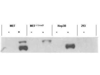 SMAD3 Antibody - Western blot using the affinity purified anti-Smad3 pS423 pS425 antibody shows detection of endogenous Smad3 in stimulated cell lysates. Lysates were prepared from control cells (- lanes), or cells stimulated with 2 ng/ml TGF for 1 hour. This reagent recognizes phosphorylated Smad3 and has negligible reactivity against non-phosphorylated Smad3 protein.