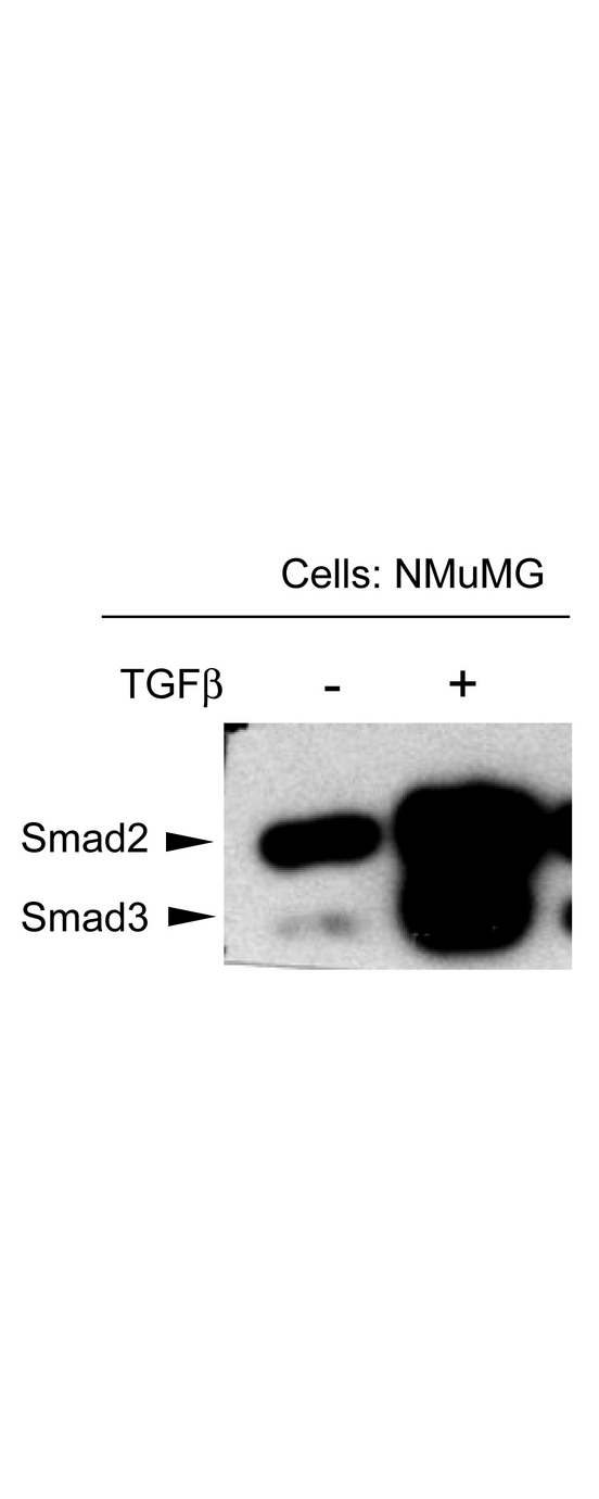 SMAD3 Antibody - NMuMG mouse mammary epithelial cells were probed for the activation of Smad3 by detecting phosphorylation of threonine 179. The cells were either untreated or treated with TGF-beta, transferred to membranes and probed with Anti-SMAD3 pT179 (RABBIT) Antibody. The antibody detects only Smad3 in stimulated cells suggesting detection of phosphorylated SMAD3 at T179.