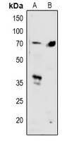 SMAD4 Antibody - Western blot analysis of SMAD4 expression in HeLa (A), mouse lung (B) whole cell lysates.