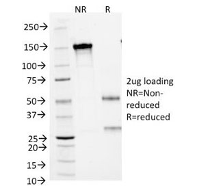 Small Cell Lung Carcinoma (SCLC) Antibody - SDS-PAGE Analysis of Purified, BSA-Free SCLC Marker Antibody (clone MOC-52). Confirmation of Integrity and Purity of the Antibody.