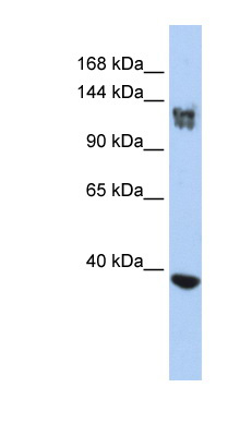 SMARCA1 antibody LS-C109921 Western blot of Jurkat lysate.  This image was taken for the unconjugated form of this product. Other forms have not been tested.