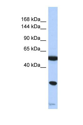 Western blot of Human Jurkat. SMARCA2 antibody dilution 1.0 ug/ml.  This image was taken for the unconjugated form of this product. Other forms have not been tested.