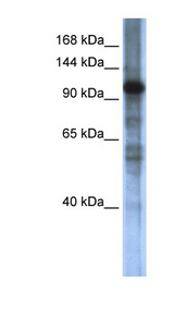 SMARCAL1 Antibody - SMARCAL1 antibody Western blot of Transfected 293T cell lysate. This image was taken for the unconjugated form of this product. Other forms have not been tested.