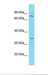 Western blot of Human Lymph Node Tumor. SMARCB1 antibody dilution 1.0 ug/ml.  This image was taken for the unconjugated form of this product. Other forms have not been tested.