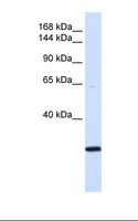 SMC2 Antibody - Transfected 293T cell lysate. Antibody concentration: 1.0 ug/ml. Gel concentration: 6-18%.  This image was taken for the unconjugated form of this product. Other forms have not been tested.