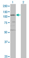 Western blot of SMC3 expression in transfected 293T cell line by CSPG6 monoclonal antibody (M02), clone 2F11.