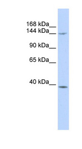 SMC4 Antibody - SMC4 antibody Western blot of MCF7 cell lysate. This image was taken for the unconjugated form of this product. Other forms have not been tested.