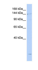 SMC4 Antibody - SMC4 antibody Western blot of Jurkat lysate. This image was taken for the unconjugated form of this product. Other forms have not been tested.