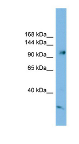 SMEK1 Antibody - SMEK1 antibody Western blot of HeLa lysate. This image was taken for the unconjugated form of this product. Other forms have not been tested.