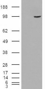 HEK293 overexpressing SMEK1 (RC221040) and probed with (mock transfection in first lane).