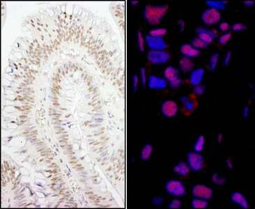 SMEK1 Antibody - Detection of Human PPP4R3 Alpha by Immunohistochemistry and Immunofluorescence. Sample: FFPE sections of human colon carcinoma (left) and breast carcinoma (right). Antibody: Affinity purified rabbit anti-PPP4R3 Alpha used at a dilution of 1:200 (1 ug/ml) and 1:80 (2.5 ug/ml). Detection: DAB and Red-fluorescent Goat anti-Rabbit IgG-heavy and light chain, cross-adsorbed Antibody DyLight 594 Conjugated used at a dilution of 1:100.