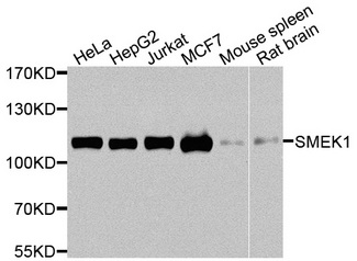 SMEK1 Antibody - Western blot analysis of extracts of various cells.