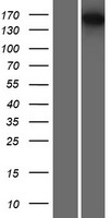 SMG6 Protein - Western validation with an anti-DDK antibody * L: Control HEK293 lysate R: Over-expression lysate