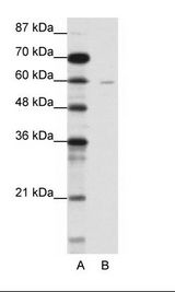 SMIF / DCP1A Antibody - A: Marker, B: Jurkat Cell Lysate.  This image was taken for the unconjugated form of this product. Other forms have not been tested.