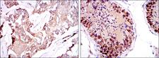 SMN1 Antibody - IHC of paraffin-embedded breast cancer tissues (left) and testis tissues (right) using SMN1 mouse monoclonal antibody with DAB staining.