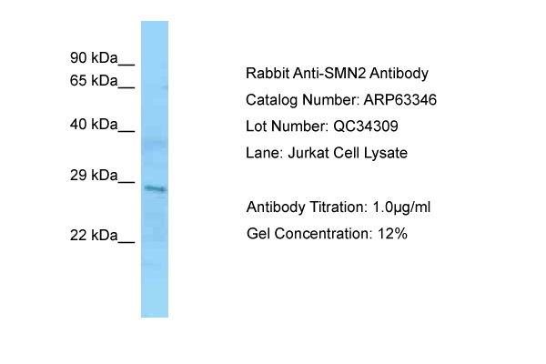 SMN1/SMN2 Antibody -  This image was taken for the unconjugated form of this product. Other forms have not been tested.