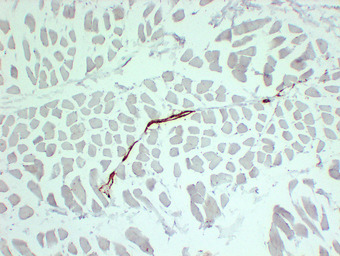 Smooth Muscle Actin Antibody - Skeletal Muscle 1