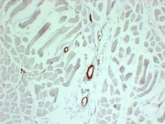 Smooth Muscle Actin Antibody - Skeletal Muscle 2