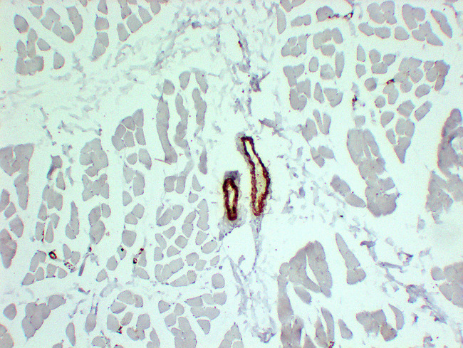 Smooth Muscle Actin Antibody - Skeletal Muscle 3