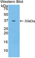 Western blot of recombinant SMPD1 / Acid Sphingomyelinase.  This image was taken for the unconjugated form of this product. Other forms have not been tested.
