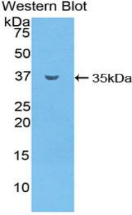 SMPD1 / Acid Sphingomyelinase Antibody - Western blot of recombinant SMPD1 / Acid Sphingomyelinase.  This image was taken for the unconjugated form of this product. Other forms have not been tested.