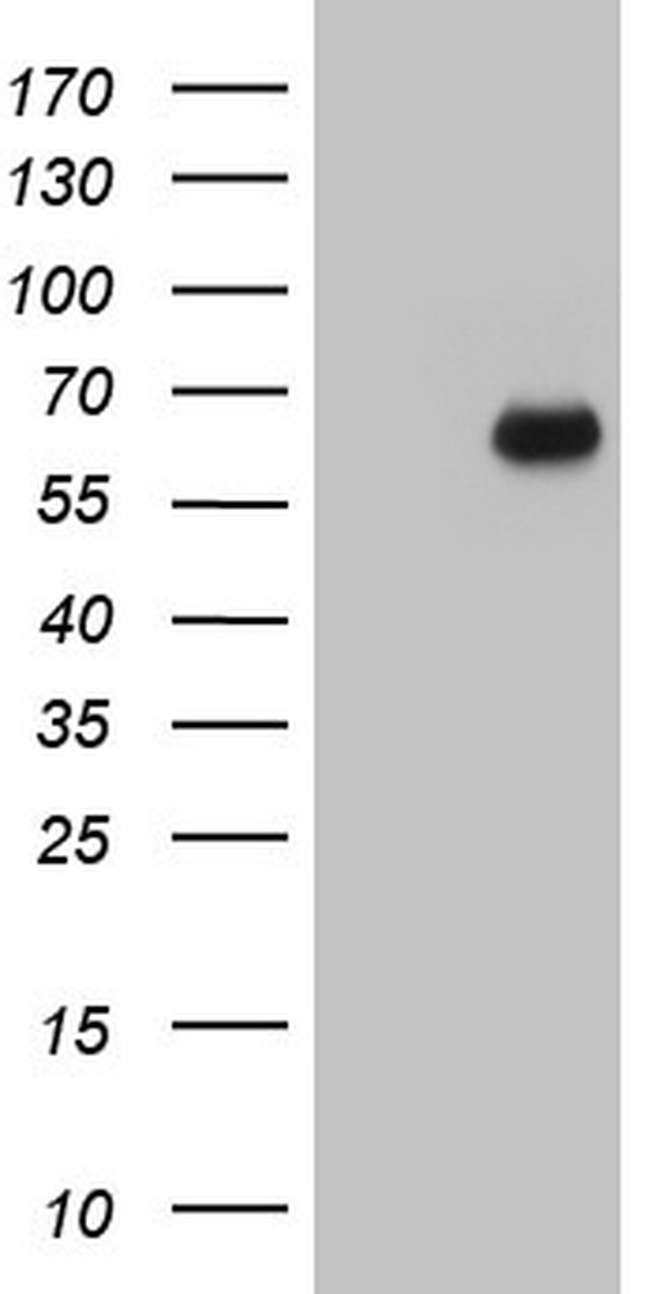 SMPD1 / Acid Sphingomyelinase Antibody - HEK293T cells were transfected with the pCMV6-ENTRY control (Left lane) or pCMV6-ENTRY SMPD1 (Right lane) cDNA for 48 hrs and lysed. Equivalent amounts of cell lysates (5 ug per lane) were separated by SDS-PAGE and immunoblotted with anti-SMPD1.