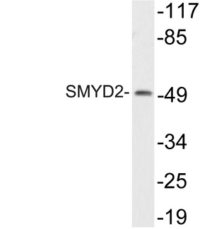 Western blot of SMYD2 (L148) pAb in extracts from HT29 cells.