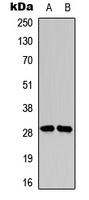 SNAI1 + SNAI2 Antibody - Western blot analysis of SNAI1/2 (pS246) expression in MDA-MB-231 (A); HT29 (B) whole cell lysates.
