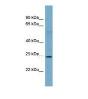Western blot of Human NCI-H226. SNAI1 antibody dilution 1.0 ug/ml.  This image was taken for the unconjugated form of this product. Other forms have not been tested.