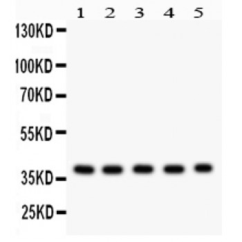 SL ug antibody Western blot. All lanes: Anti SL ug at 0.5 ug/ml. Lane 1: Mouse Kidney Tissue Lysate at 50 ug. Lane 2: Mouse Lung Tissue Lysate at 50 ug. Lane 3: Mouse Spleen Tissue Lysate at 50 ug. Lane 4: Mouse Brain Tissue Lysate at 50 ug. Lane 5: MCF-7 Whole Cell Lysate at 40 ug. Predicted band size: 30 kD. Observed band size: 39 kD.