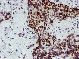 IHC of paraffin-embedded Carcinoma of Human lung tissue using anti-SNAI2 mouse monoclonal antibody.