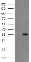 HEK293T cells were transfected with the pCMV6-ENTRY control (Left lane) or pCMV6-ENTRY SNAI2 (Right lane) cDNA for 48 hrs and lysed. Equivalent amounts of cell lysates (5 ug per lane) were separated by SDS-PAGE and immunoblotted with anti-SNAI2.