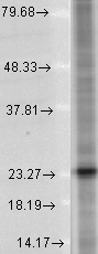 Western blot analysis of SNAP25 in a human cell line mix using a 1:1000 dilution of SNAP25 antibody.  This image was taken for the unconjugated form of this product. Other forms have not been tested.