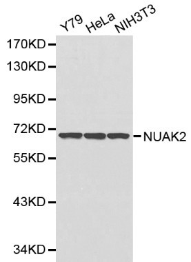 Western blot of NUAK2 pAb in extracts from Y79, Hela and NIH3T3 cells.