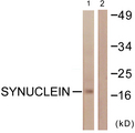 Western blot analysis of lysates from HUVEC cells, using Synuclein Antibody. The lane on the right is blocked with the synthesized peptide.