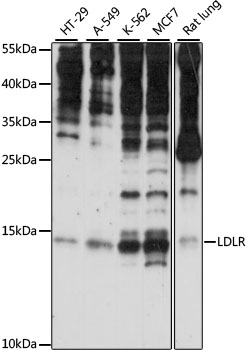 SNRNP25 Antibody - Western blot analysis of extracts of various cell lines, using SNRNP25 antibody at 1:1000 dilution. The secondary antibody used was an HRP Goat Anti-Rabbit IgG (H+L) at 1:10000 dilution. Lysates were loaded 25ug per lane and 3% nonfat dry milk in TBST was used for blocking. An ECL Kit was used for detection and the exposure time was 30s.