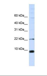 MCF7 cell lysate. Antibody concentration: 1.0 ug/ml. Gel concentration: 10-20%.  This image was taken for the unconjugated form of this product. Other forms have not been tested.
