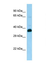 SNUPN antibody Western blot of Rat Brain lysate. Antibody concentration 1 ug/ml.  This image was taken for the unconjugated form of this product. Other forms have not been tested.
