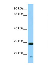 SNX12 antibody Western blot of COL0205 Cell lysate. Antibody concentration 1 ug/ml.  This image was taken for the unconjugated form of this product. Other forms have not been tested.