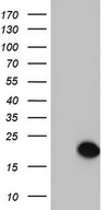 SNX12 Antibody - HEK293T cells were transfected with the pCMV6-ENTRY control (Left lane) or pCMV6-ENTRY SNX12 (Right lane) cDNA for 48 hrs and lysed. Equivalent amounts of cell lysates (5 ug per lane) were separated by SDS-PAGE and immunoblotted with anti-SNX12.
