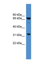 SNX18 Antibody - SNX18 antibody Western blot of A549 cell lysate. This image was taken for the unconjugated form of this product. Other forms have not been tested.