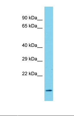 Western blot of Human Hela. SNX22 antibody dilution 1.0 ug/ml.  This image was taken for the unconjugated form of this product. Other forms have not been tested.