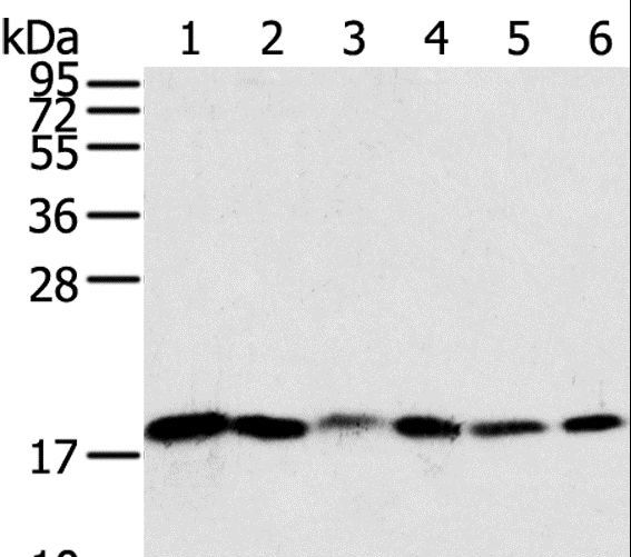 SNX3 Antibody - Western blot analysis of Human colon sigmoideum cancer and colon cancer tissue, mouse lung and human normal colon tissue, LOVO and HeLa cell, using SNX3 Polyclonal Antibody at dilution of 1:250.