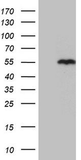 SNX4 Antibody - HEK293T cells were transfected with the pCMV6-ENTRY control. (Left lane) or pCMV6-ENTRY SNX4. (Right lane) cDNA for 48 hrs and lysed. Equivalent amounts of cell lysates. (5 ug per lane) were separated by SDS-PAGE and immunoblotted with anti-SNX4. (1:2000)