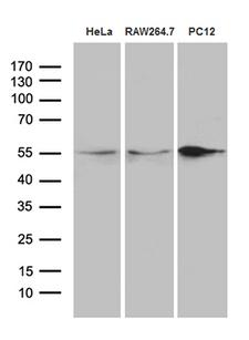 SNX4 Antibody - Western blot analysis of extracts. (35ug) from 3 different cell lines by using anti-SNX4 monoclonal antibody. (1:500)