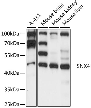 SNX4 Antibody - Western blot analysis of extracts of various cell lines, using SNX4 antibody at 1:1000 dilution. The secondary antibody used was an HRP Goat Anti-Rabbit IgG (H+L) at 1:10000 dilution. Lysates were loaded 25ug per lane and 3% nonfat dry milk in TBST was used for blocking. An ECL Kit was used for detection and the exposure time was 10s.