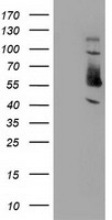 SNX8 Antibody - HEK293T cells were transfected with the pCMV6-ENTRY control (Left lane) or pCMV6-ENTRY SNX8 (Right lane) cDNA for 48 hrs and lysed. Equivalent amounts of cell lysates (5 ug per lane) were separated by SDS-PAGE and immunoblotted with anti-SNX8.